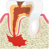Tooth Plaque and Tartar